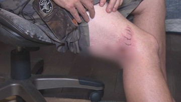 Shark bite victim gives first sit-down interview about attack at Crystal Beach
