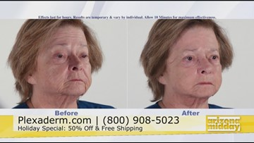 Take Years Off Your Appearance For the Holidays With Plexaderm
