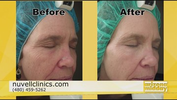 Look Years Younger in Minutes at Nuvell Clinics