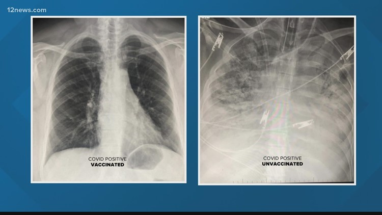 COVID-19 lung X-ray shows vaccine effectiveness