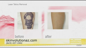 Tattoo Removal with Skinvolution
