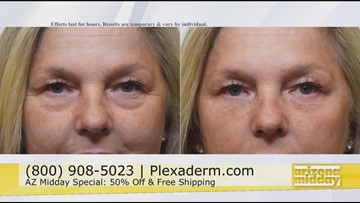 Turn Back Time & Get Ageless Beauty with Plexaderm