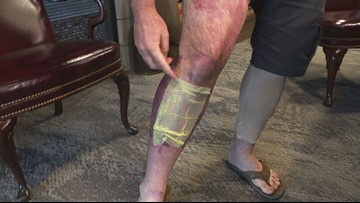 Arizona firefighter badly injured in mulch fire challenges 'Firefighter's Rule'