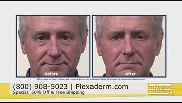 Feel Confident with Plexaderm
