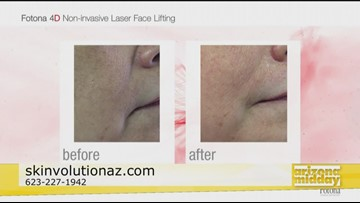 Look Younger with Skinvolution