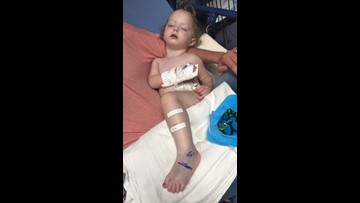 19-month-old is first snake bite victim treated at a Texas hospital in 2019